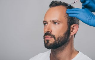 Man receiving injections for hair replacement.