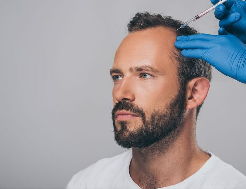 Dealing With Thinning Hair — The Natural Way.