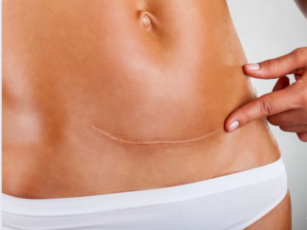 C-section Scar Injection therapy Seattle